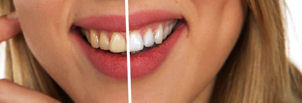 denti macchiati e bianchi